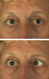 Diplopia Visual Surgery